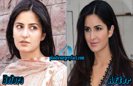 Katrina Kaif Plastic Surgery Nose Before and After Photos
