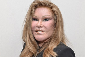 Jocelyn Wildenstein Plastic Surgery Pictures