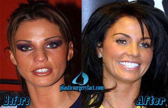 Katie Price Before and After Veneers