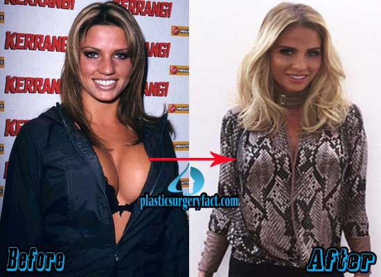 Katie Price Breast Reduction Before and After