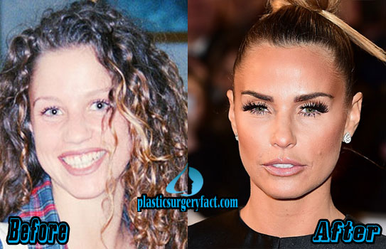 Katie Price Plastic Surgery Before and After Botox
