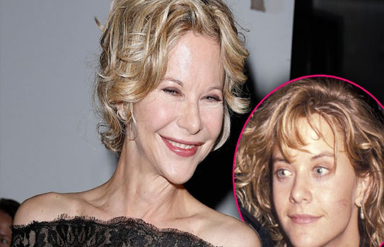 Meg Ryan Bad Plastic Surgery