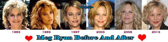 Meg Ryan Before And After