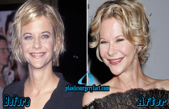 Meg Ryan Before and After Plastic Surgery