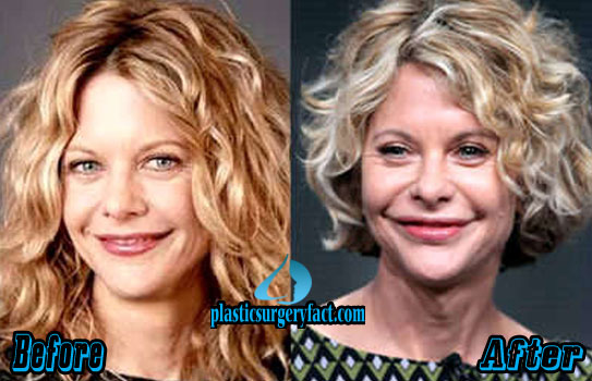 Meg Ryan Surgery Before and After