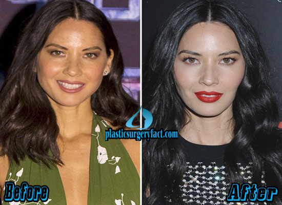 Olivia Munn Before and After Photos