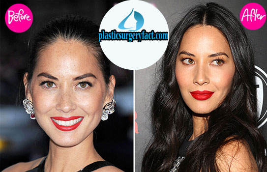 Olivia Munn Plastic Surgery Before and After Photos