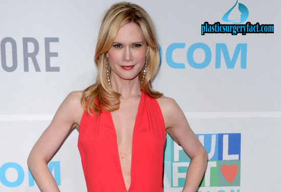 Stephanie March Photo 2015 After Breast Implants Removed