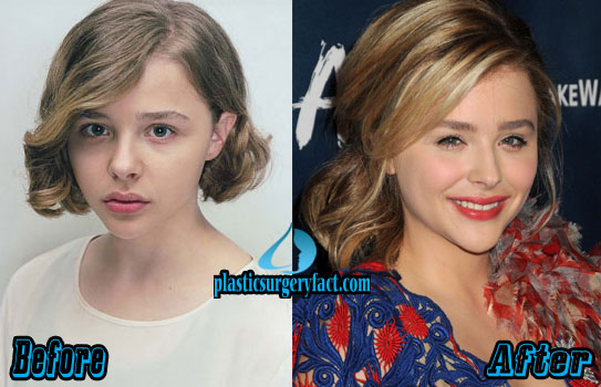 Chloe Grace Moretz Plastic Surgery Before and After