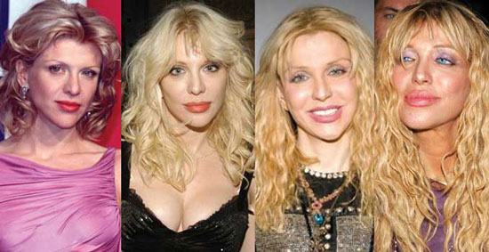 Courtney Love Before and After Plastic Surgery