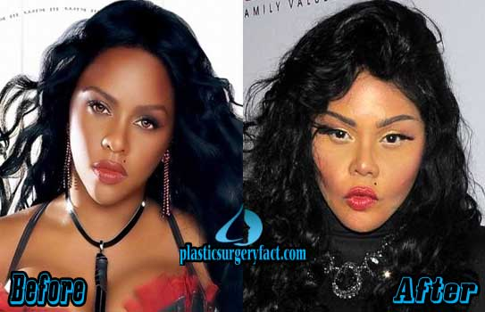 Too Much Plastic Surgery Before And After Worst