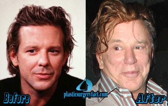 Mickey Rourke Before and After Plastic Surgery