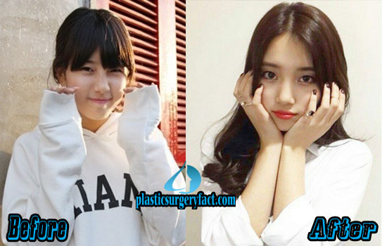 Suzy Bae Plastic Surgery Before and After Eyelid Surgery