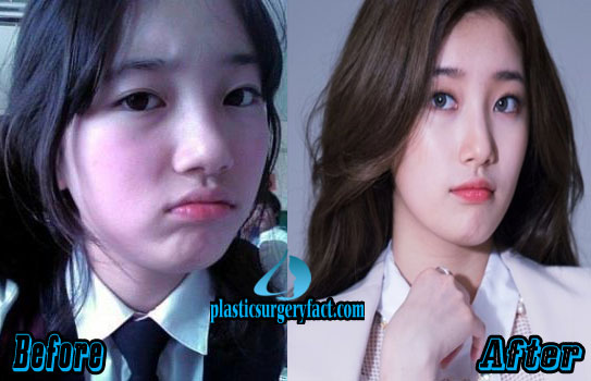 Suzy Bae Plastic Surgery Before and After Nose Job