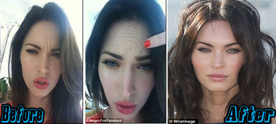 Megan Fox Before After Botox