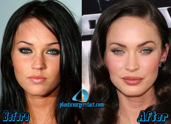 Megan Fox Lips Before And After Pictures