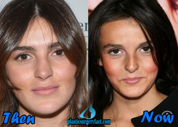 Ali Lohan Celebrities That Had Plastic Surgery