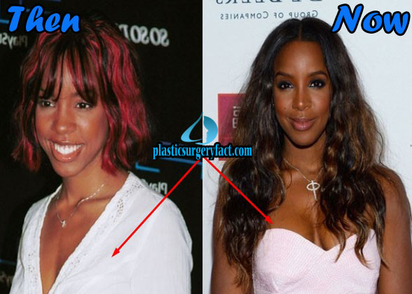 Kelly Rowland Before And After Plastic Surgery