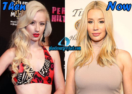 Best Celebrity Plastic Surgery Iggy Azalea