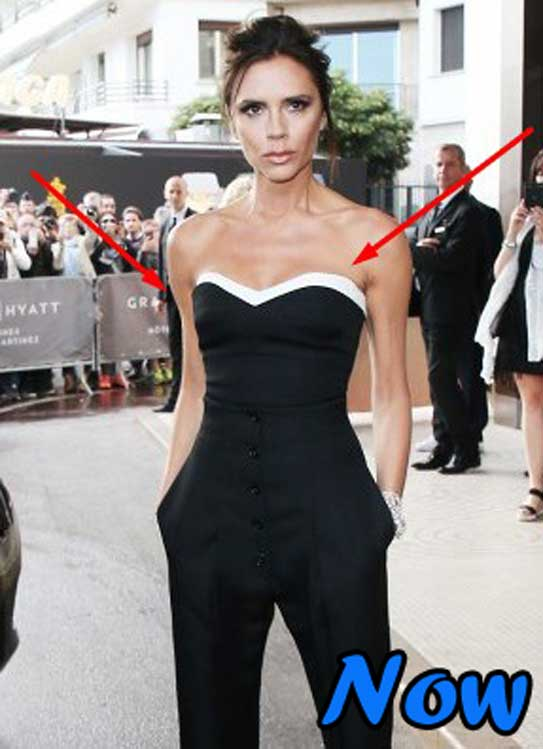 Celebrities Plastic Surgery Victoria Beckham