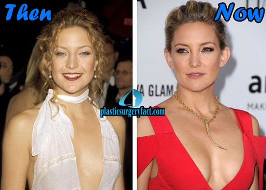 Celebrities Who Had Plastic Surgery