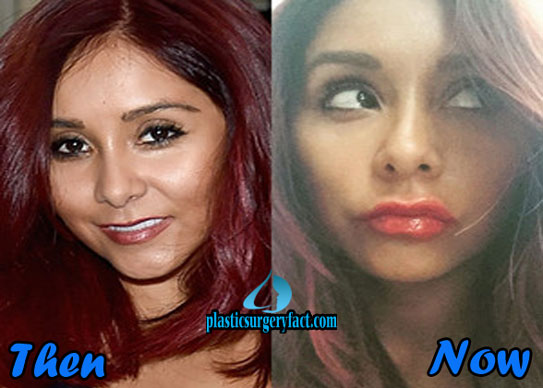 Celebrities Who Have Had Plastic Surgery