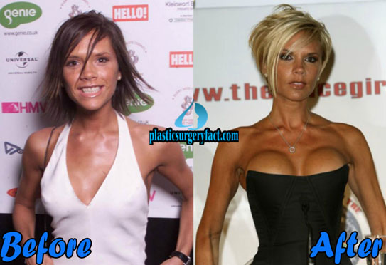 Celebrities with Plastic Surgery Victoria Beckham