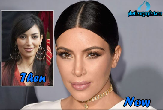 Celebrity Plastic Surgery Before and After Kim Kardashian