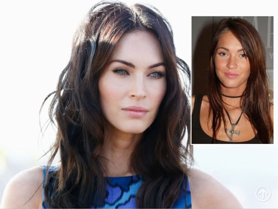 Plastic Surgery Celebrities Megan Fox