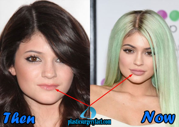 Plastic Surgery Celebrity Kylie Jenner