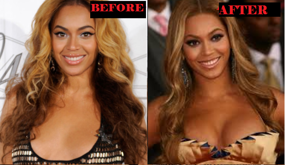 Beyonce Breast Implant Before and After