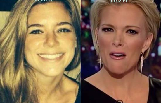 Megyn Kelly Before and After Filler Injection