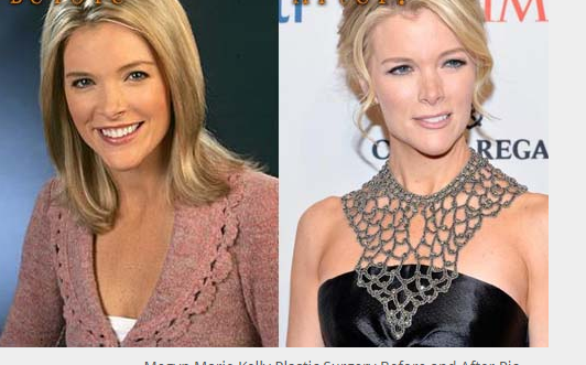 Megyn Kelly Nose Job