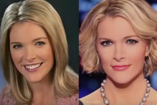 Megyn Kelly Plastic Surgery Before and After