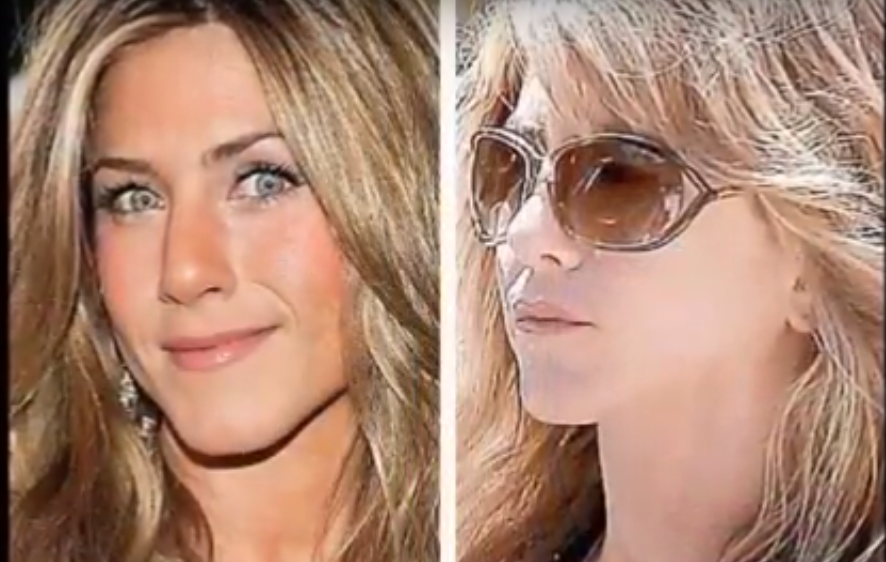 Jennifer Aniston Lips Before and After