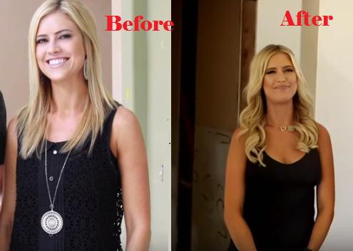 Did Christina El Moussa Undergo Plastic Surgery Plastic