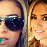 Christina El Moussa Botox Injection