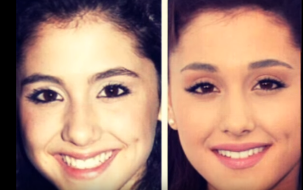 Ariana Grand Face Modifications before and after