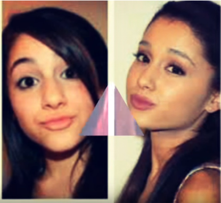 Ariana Grand plastic Surgery