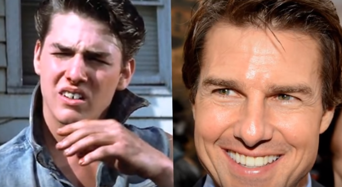 Tom Cruise Before and After Braces Treatment