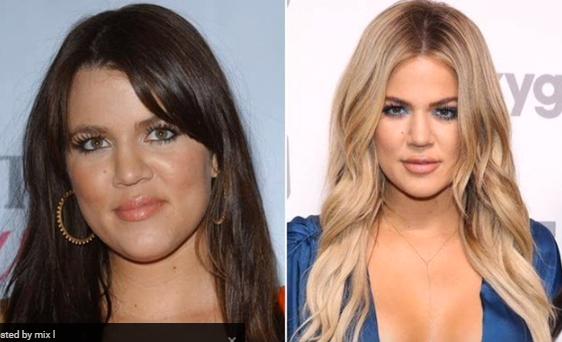 Has Khloe Kardashian Gone for Plastic Surgery? - Plastic ...